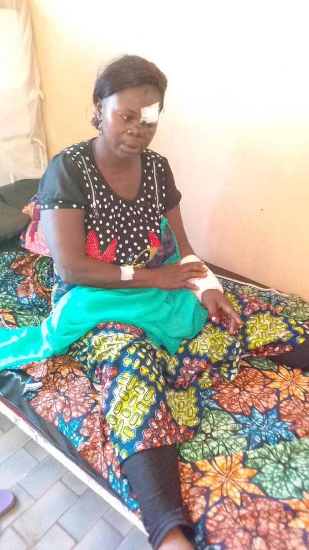 Kalemie : Evacuation  médicale vers Bukavu par le CICR d'une victime de bastonnade blessée gravement à l'œil.