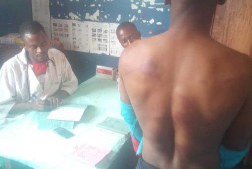 Tanganyika/Nyunzu : Des hommes en tenue militaire frappent affreusement un motocycliste pour refus de paiement d'une taxe.